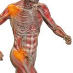 Wat Is Spierpijn?